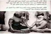 زیارت بارگاه امام حسین(ع) در قبال قطع دست !